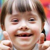 hechos básicos y generales sobre el síndrome de Down - 6 Datos