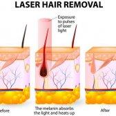 Dos y no hacer de la depilación láser