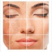 La pigmentación de la piel de la curación